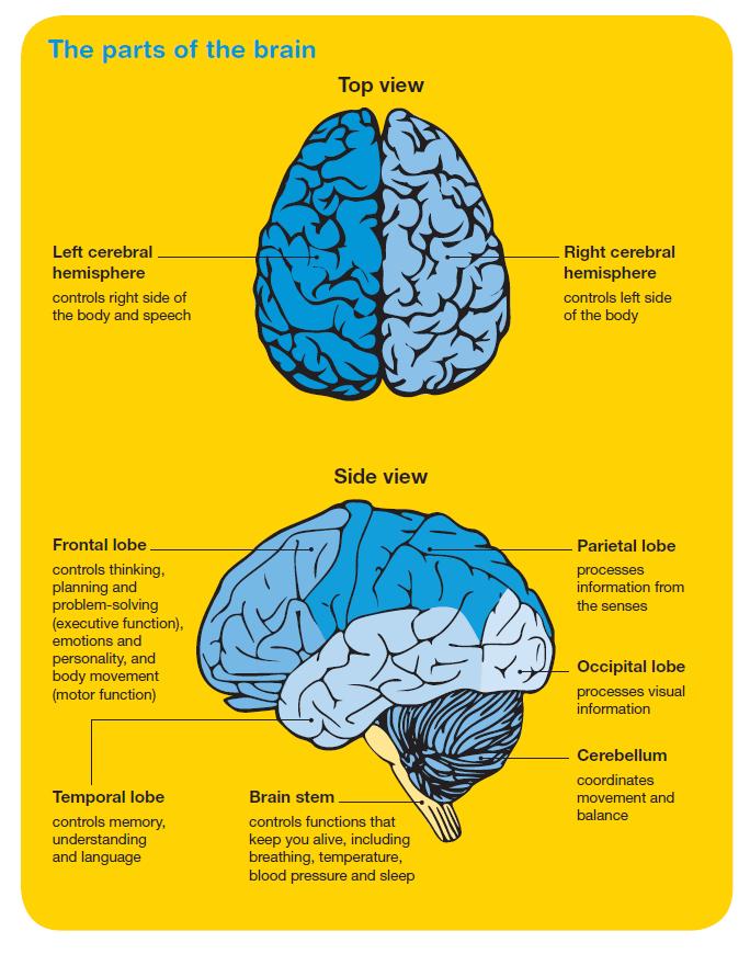 Brain Tumours Image 2