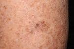 melanoma-4