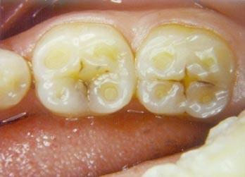 BHC-Dental-Erosion