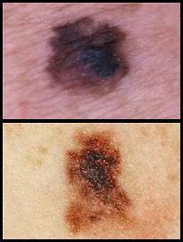 Scan-Cancer-Melanoma