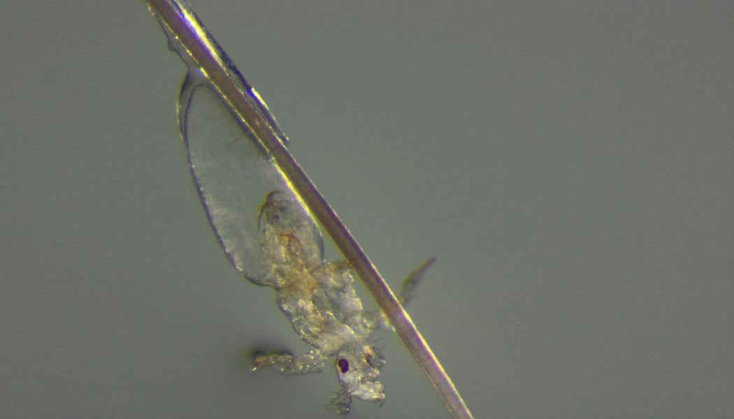 head-lice-hatching_Laboratorio-Diagnostica-Ancona_1050x600